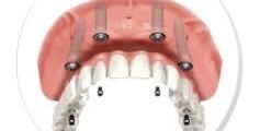 Denti Fissi In Un Giorno Prezzi